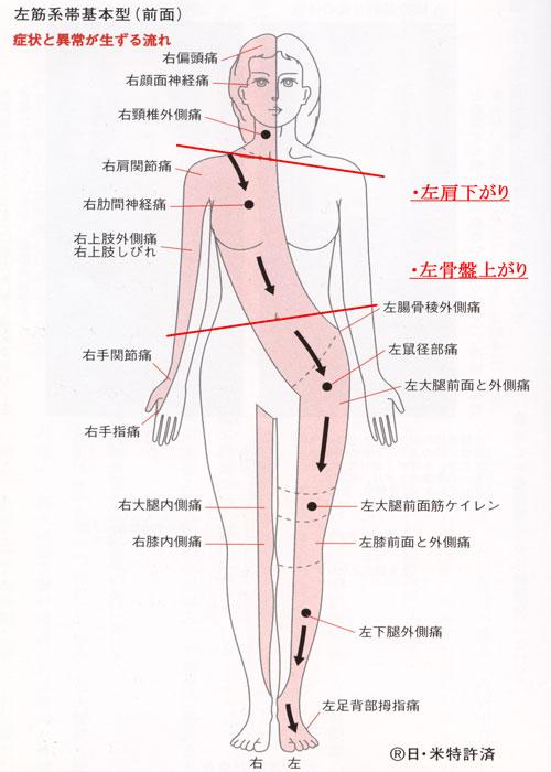 左筋系帯前