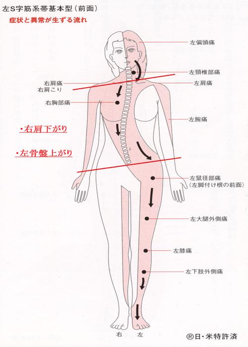 左S字筋系帯前