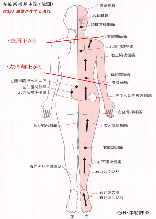 左筋系帯後ろ