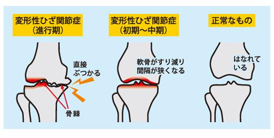 変形性膝関節痛