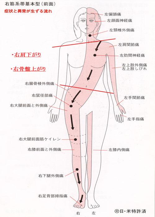 右筋系帯前